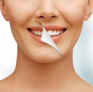 Trendthema ist das Bleichen von Zähnen.
